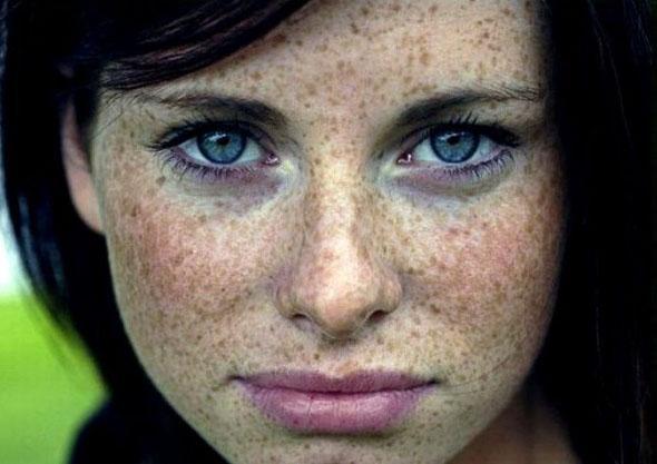 Фотостарение кожи признаки