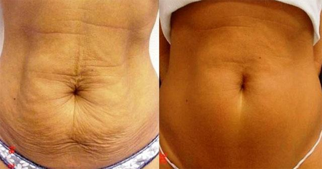 фото до и после подтяжки живота