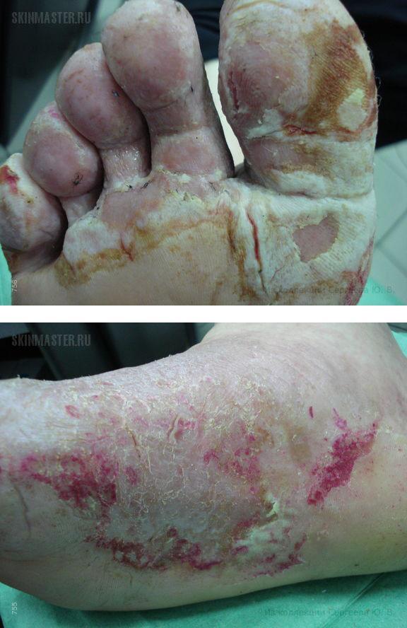 Дисгидротическая экзема, осложненная вторичной инфекцией