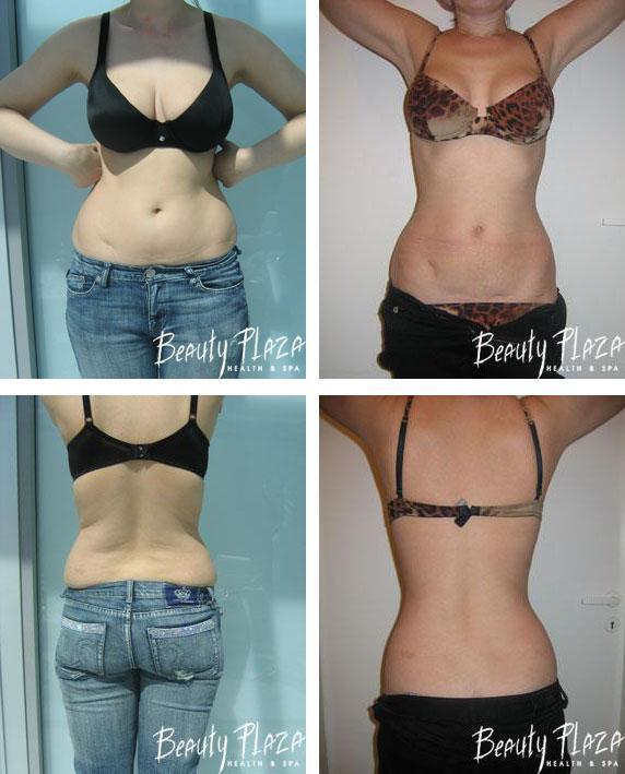 Как быстро и бесплатно сбросить вес