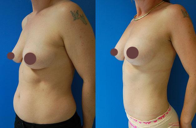 Цена операции по увеличению груди в уфе