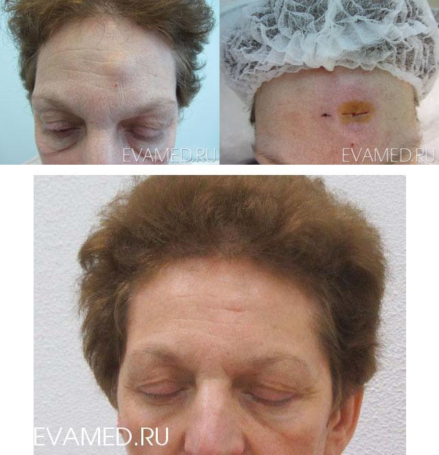 Операция по удалению липомы хирургическим путем