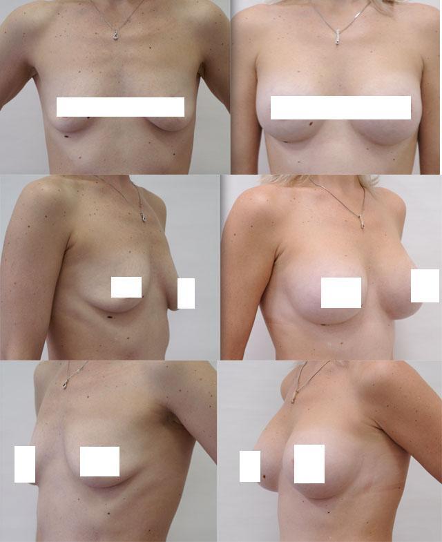 Восстановление формы груди после родов методом мастопексии с установкой имплантов