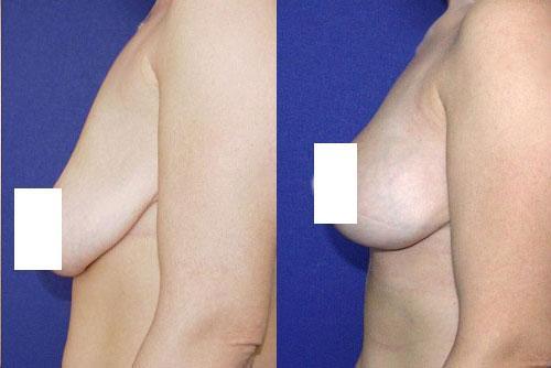Нитевая подтяжка груди