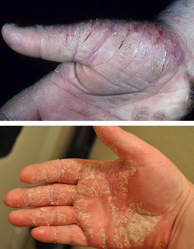 Как сделать псориаз на руках