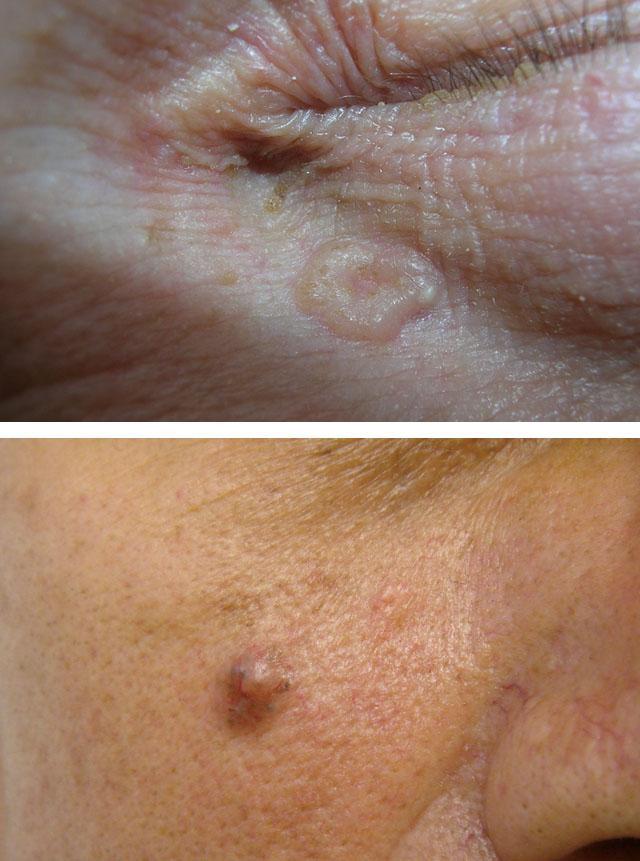 Базалиома кожи лица