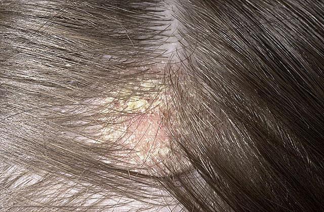 Волосы выпадают от желатиновой маски для