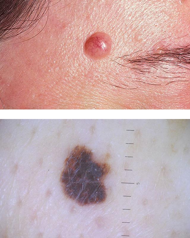 Ювенильная меланома; Диспластический невус
