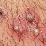Импетиго: этиология и патогенез заболевания, лечение