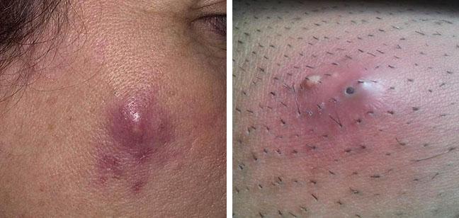 Сильный сухой кашель по ночам у взрослого лечение