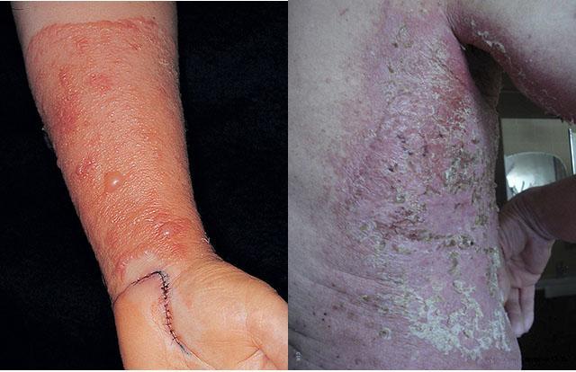 Народные мази от атопического дерматита