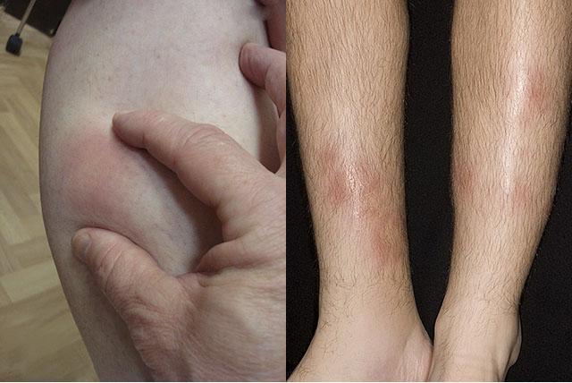 может быть аллергия на креветки