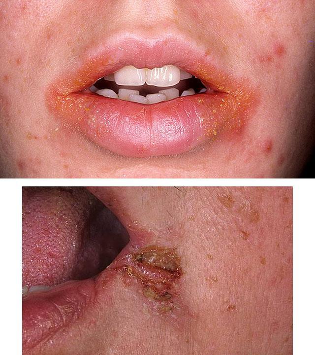 стрептодермия на губах
