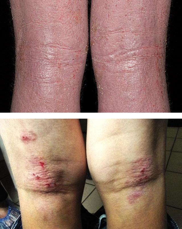 Зудящий дерматоз: симптомы, виды, принципы лечения, фото