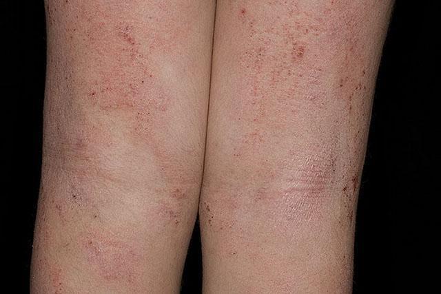 Атопический дерматит - детская фаза