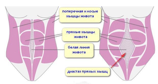что такое диастаз прямых мышц живота