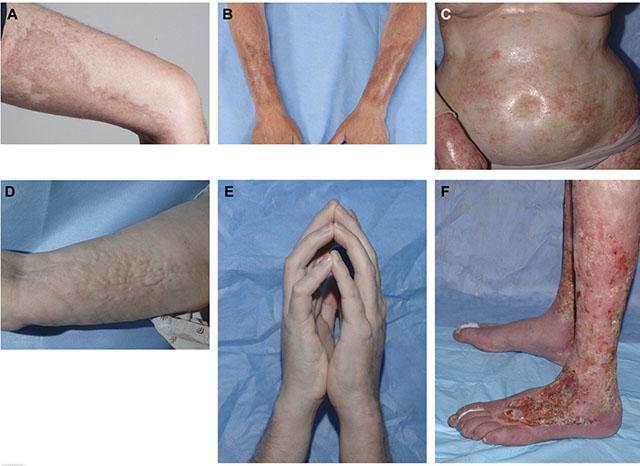 Системная склеродермия грязевое лечение