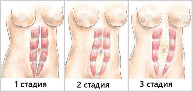 как определить наличие глистов у человека симптомы