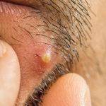 Как выглядит абсцесс кожи, хирургическое и домашнее лечение