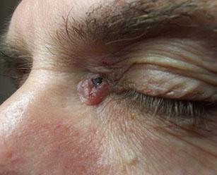 базальный клеточный рак кожи фото