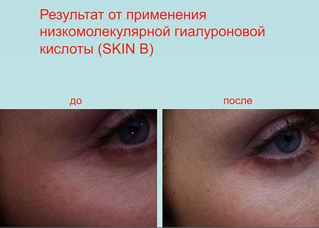 биоревитализация skin b