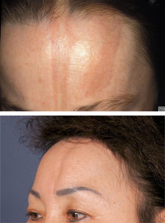 Склеродермия выпадение волос