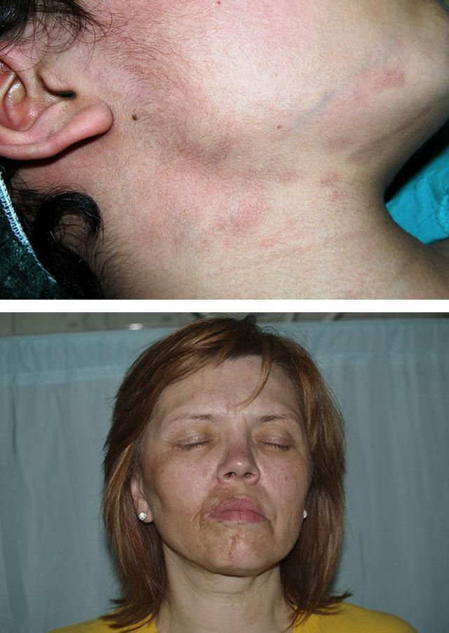 Поражение лица при линейной склеродермии