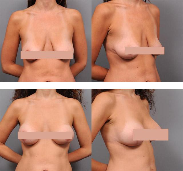 10 способов подтянуть кожу тела после похудения или родов