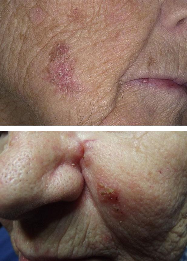 Плоскоклеточный рак кожи лица