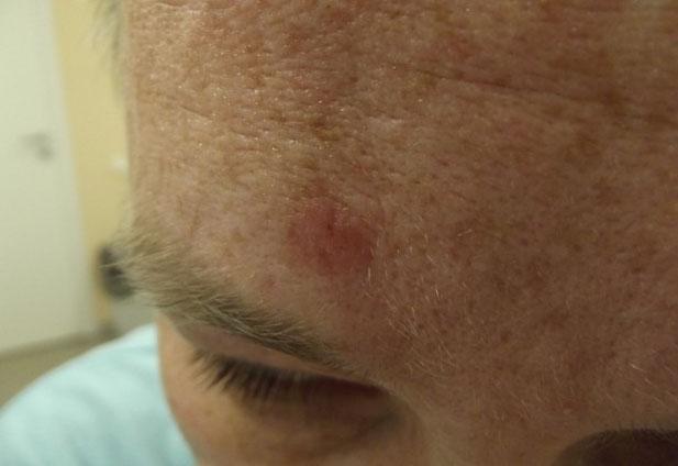 Симптомы плоскоклеточного рака кожи
