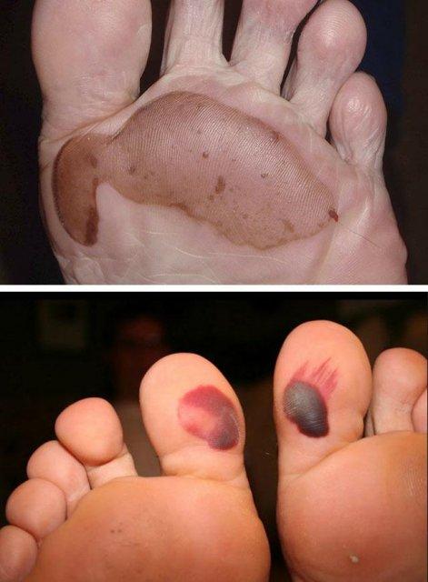 Удалить мозоль на пальце ноги в домашних условиях