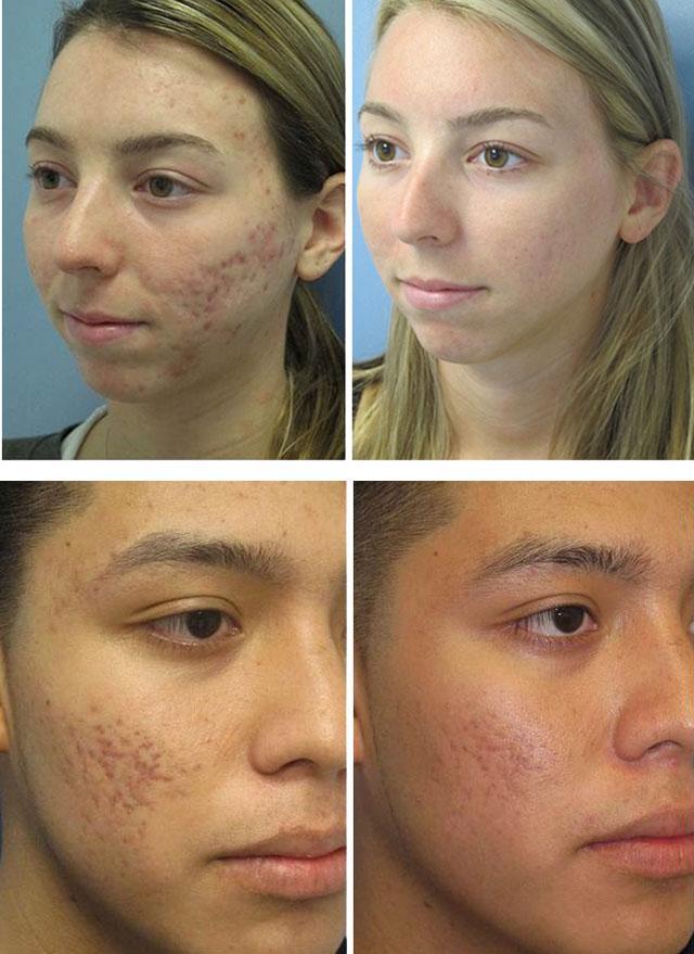 Ссадина на лице быстрое лечение в домашних условиях