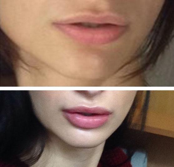 Дермафил для губ