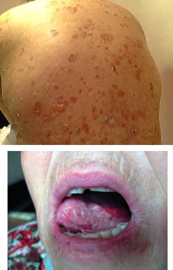 Вульгарная пузырчатка в полости рта