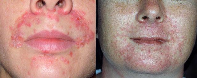 Фото периорального дерматита