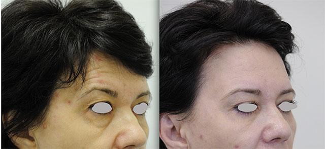 кора крем вокруг глаз против морщин