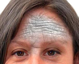 морщины под глазами в 20 лет как убрать