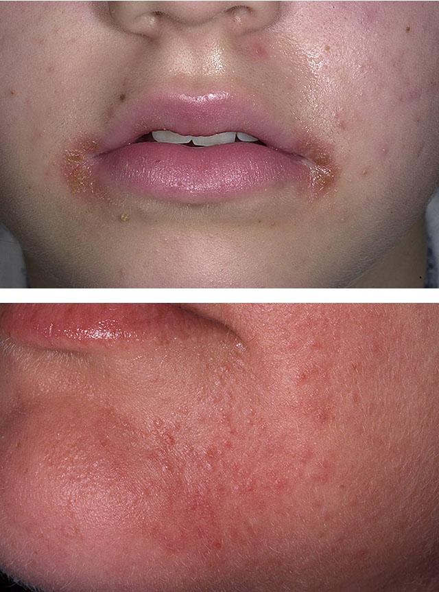Симптомы периорального дерматита