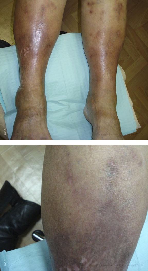 Симптомы варикозного дерматита