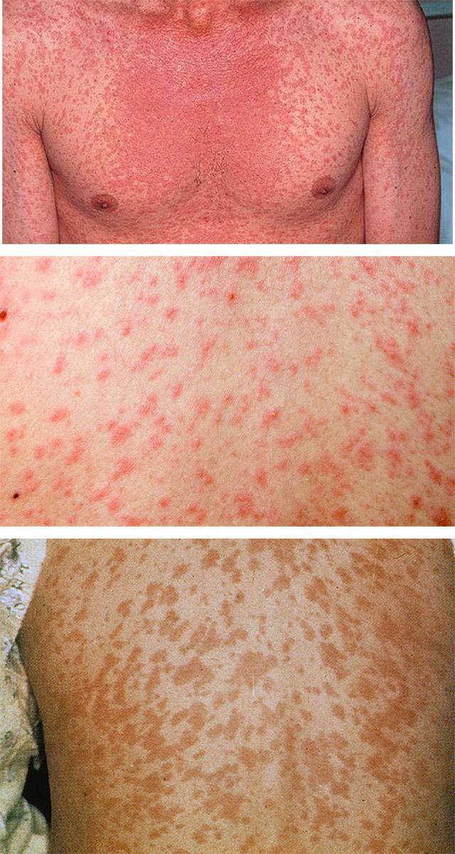 Вирусный дерматит