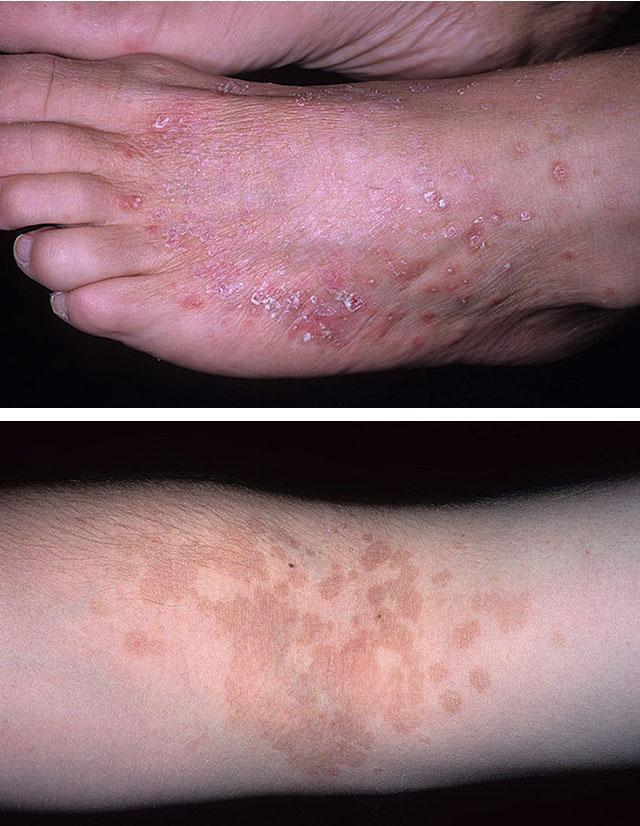 Фототоксическая реакция кожи