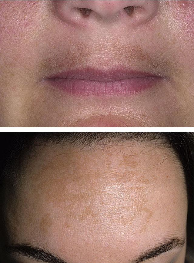 Пигментные пятна на лице, руках, теле: причины появления, методы удаления