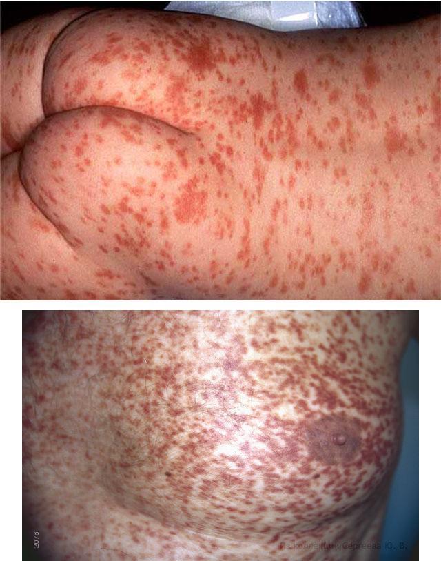 Мастоцитоз: проявления и лечение заболевания у взрослых и детей, lady-and-beauty