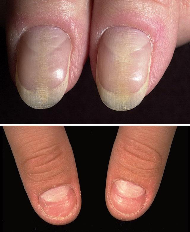 Фото атрофии ногтей