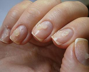 Лечить грибок ногтей ног чесноком