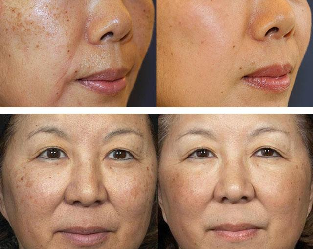 Лазерное отбеливание кожи лица