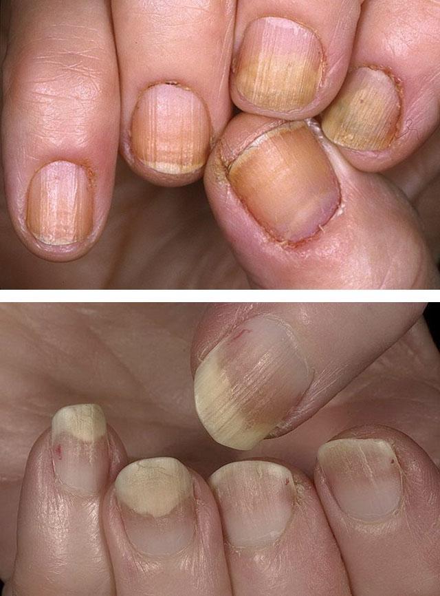 Какое самое лучшее лекарство от грибка ногтей