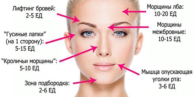 Сколько единиц Botox нужно на лицо