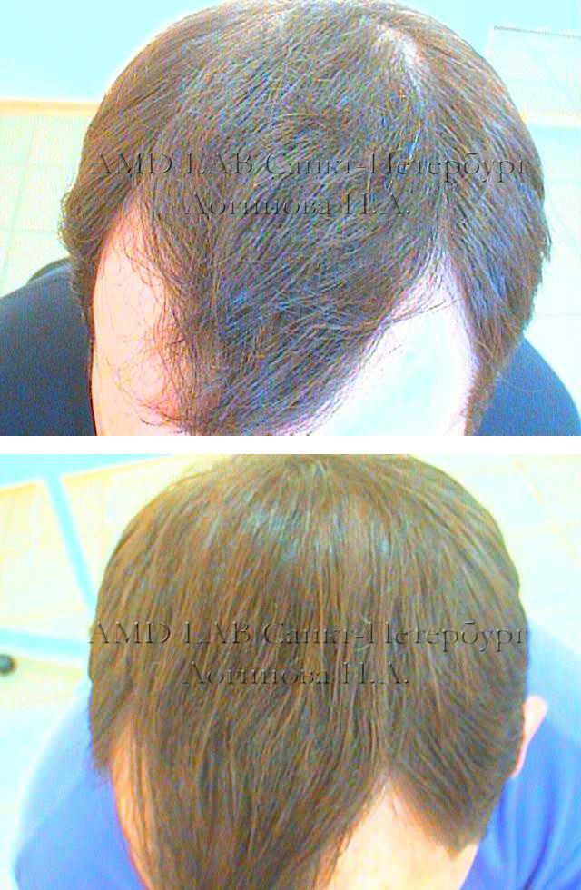 Как гормоны влияют на волосы