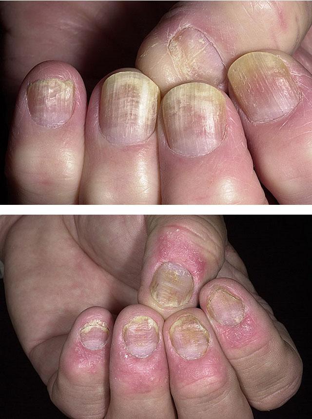От чего заводиться грибок на ногтях